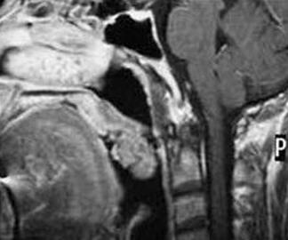 咽部异物感一年余为何因?