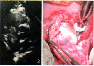 右心房血管肉瘤1例