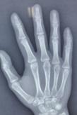 示指掌侧掌指关节脱位合并掌骨头骨折一例
